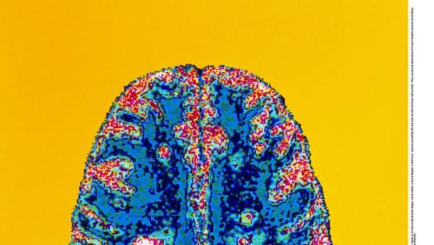 Neue Ideen für die Behandlung von Multipler Sklerose