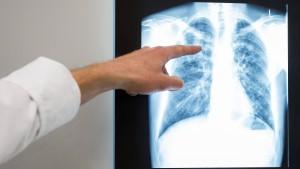 Welches Signal Ärzte mit dem Streit über Stickoxide setzen