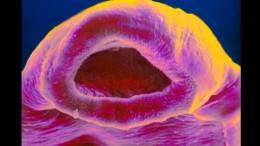 Was einen gefährlichen Parasiten genetisch flexibel macht