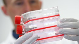 25 Neuinfektionen und zwei Tote in Hessen