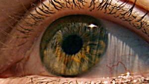 Das Auge ist die Hoffnung für MS-Patienten