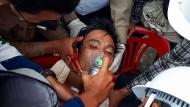Ein in der myanmarischen Stadt Dawei verletzter Demonstrant