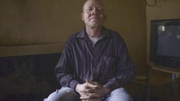 Krank und diskriminiert: Albinos in Malawi