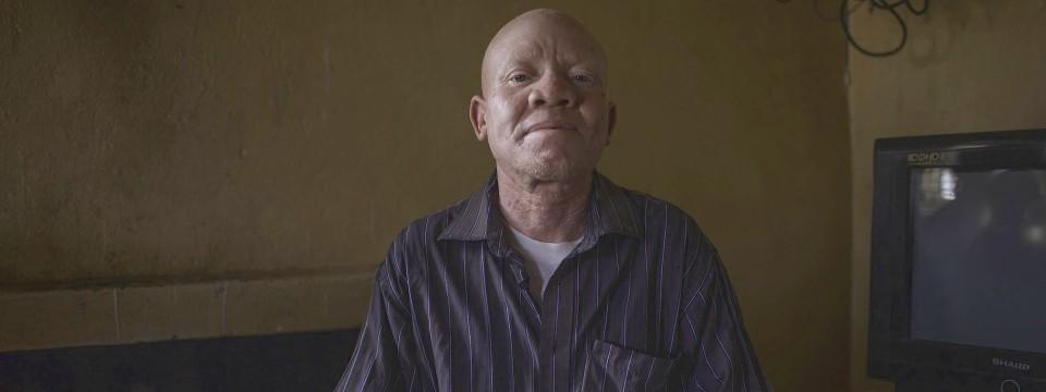 Fühlt sich aufgrund seiner Erkrankung nirgends sicher: Willard in seinem Haus im Süden Malawis.