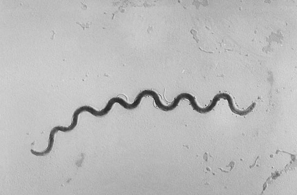 syphilis erreger