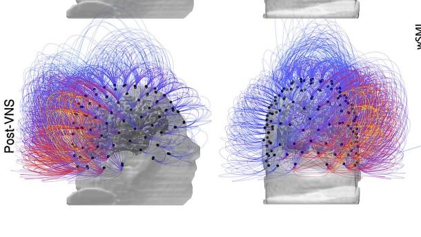 Hirnstimulator hilft aus Bewusstlosigkeit