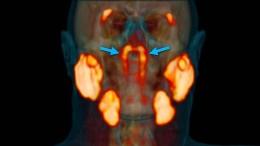 Neues Organ im Rachen entdeckt