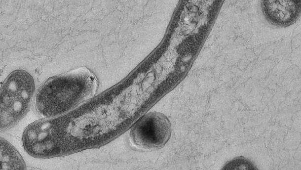 Tuberkulose bleibt ein Problem