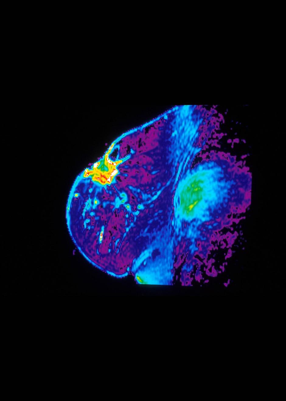 Kernspin-Aufnahme eines Brusttumors. Künstliche Intelligenz kann Details unter Umständen viel besser erkennen.