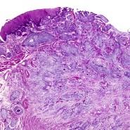 Zellen im unteren Teil der Speiseröhre.