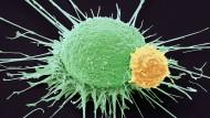 Ein T-Lymphozyt (gelb) bindet an eine Prostatakrebszelle