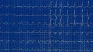 Elektrodiagramm eines aus dem Takt geratenen Herzens.