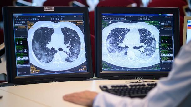 Lungenforscher testen Corona-Wirkstoff zum Inhalieren