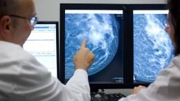 Ein Plädoyer für die Mammographie