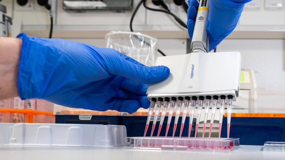 Ein Laborant arbeitet am Donnerstag mit einer Pipette im Institut für Virologie an der Charité Berlin Mitte, dort laufen Untersuchungen zum Coronavirus.