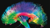Das menschliche Gehirn: Sichtbar gemacht sind hier Nervenbahnen der weißen Hirnsubstanz, die verschiedene Regionen verknüpfen.