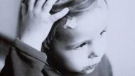 Untypischerweise erholen sich Kinder von Gehirnerschütterungen schlechter als Erwachsene.