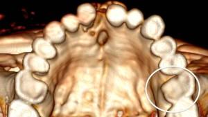 Der Ötzi hatte schlechte Zähne