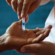 Sind die Nerven womöglich geschädigt? Oder ist noch etwas zu spüren? Das überprüft der Arzt an Händen – und Füßen.