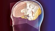 Die Hirnforschung bemüht sich, die letzten Rätsel zu lösen.