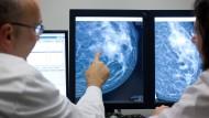 Ein Radiologe deutet auf eine Auffälligkeit in einer weiblichen Brust hin.