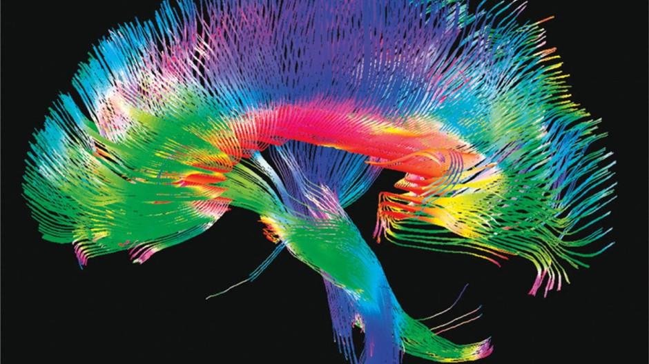 Komplexes Wunderwerk: Das Hirn hat großes Trainingspotential und fiese Mechanismen zu bieten