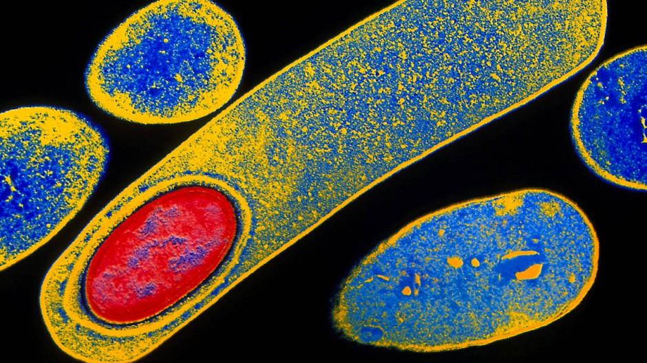 Sieht hübsch aus, ist aber keine Kunst: Das Bakterium Cholstridium difficile löst schwere Darmerkrankungen aus