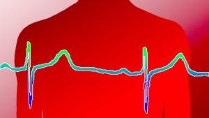Mord durch Herzschritthacker?