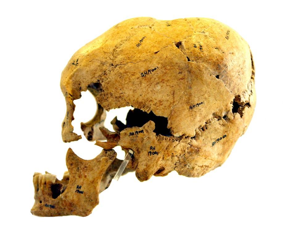 Fund von Tepe Abdul Hosein: Dieser Schädel einer Frau wurde zu Lebzeiten verformt.