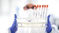Ein Mitarbeiter eines Labors in Baden-Württemberg hält einen Ständer mit diversen Rachenabstrichröhrchen in den Händen.