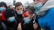 Viele Nawalnyj-Anhänger erlebten bei den Demonstrationen Polizeigewalt, wie dieser Mann in der russischen Hauptstadt Moskau