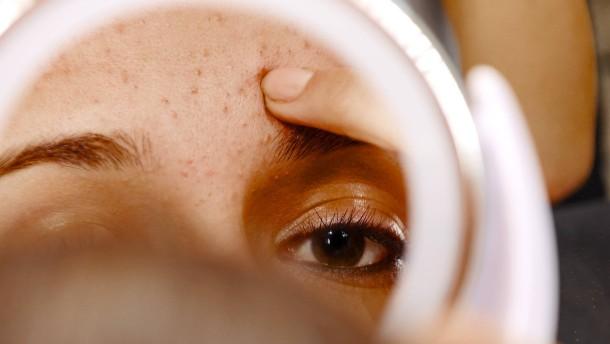 Ist Akne wirklich ein Problem?