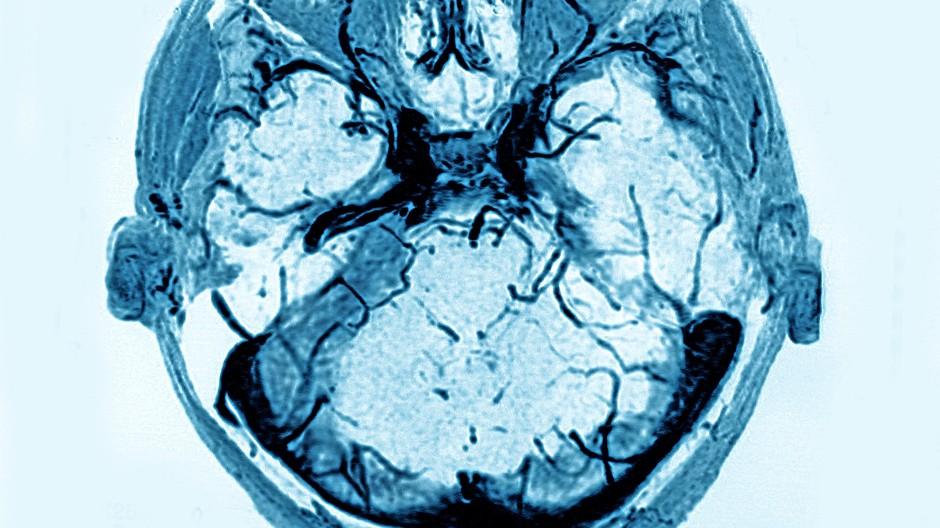 Ein Fall für die Nachsorge: Bildgebendes Verfahren bei einem Schlaganfallpatienten