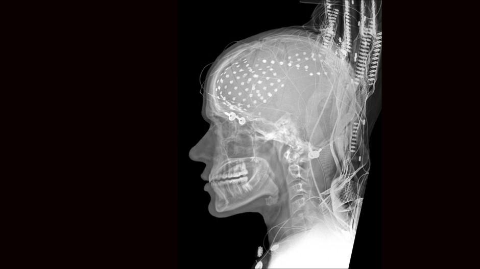 Bald ohne ethische Prüfung? Röntgenaufnahme des Kopfes eines Epilepsie-Patienten und Teilnehmers an einer Studie zur Sprachbildung und Spracherkennung