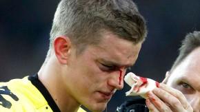 Auf der Nase läufts: Bender muss nach Dioufs Tritt verletzt vom Feld
