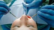 Nicht angenehm und noch dazu oft mit hohen Kosten für den Patienten verbunden: Eine Behandlung beim Zahnarzt ist häufig aus mehreren Gründen lästig.