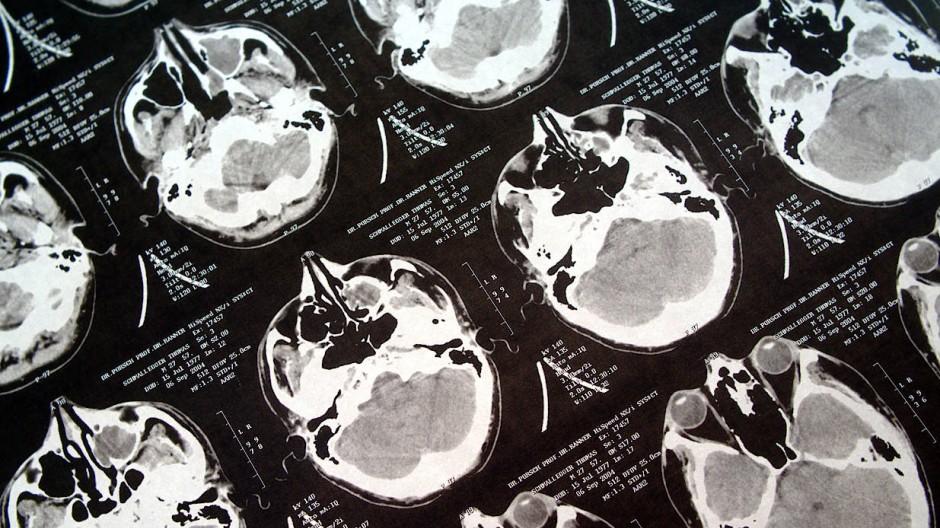 Computertomographische Schnittaufnahmen durch Gehirn und Schädel. Die Technik liefert mittlerweile derart viele Informationen, dass Mediziner bei der Auswertung kaum noch hinterherkommen.