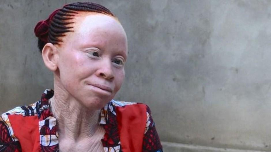 Albinos finden Zuflucht auf der Insel Ukerewe