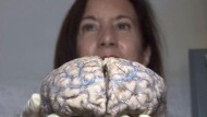 Im Kabinett der kranken Gehirne