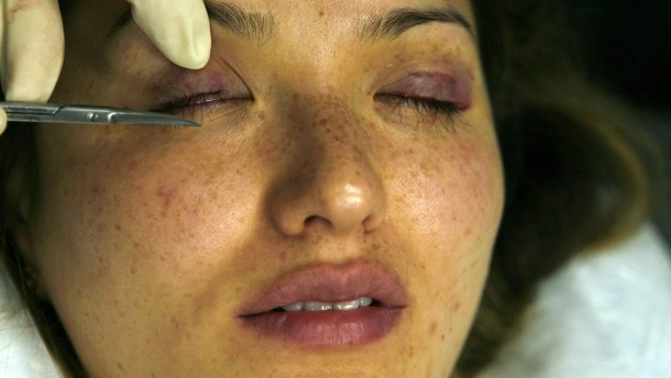 Woman's completed eyelash transplants are cut to size at a surgery in Los Angeles