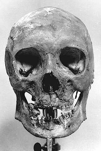 Schädel Heinrichs IV. aus dem Dom von Speyer