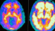MRT- und PET-Aufnahmen zeigen die Unterschiede: Hirnbilder von einem gesunden Probanden (l.) und einem Alzheimerpatienten.