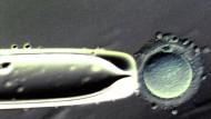 Ist es ein Mensch, ein Embryo?