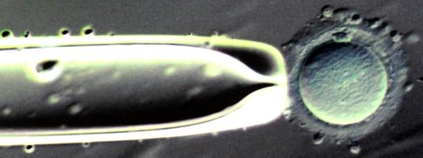 Hundertfach vergrößert:  Eizelle mit einer Injektionspipette, aufgenommen in der Leipziger Universitätsfrauenklinik