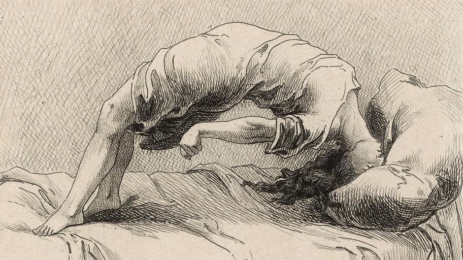Im 19. Jahrhundert wurde die Hysterie als medizinisches Phänomen erfunden, heute ist es ein schützenswertes Wort: Abbildung aus La Grande Hysterie (1881).