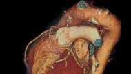 Keine Spur von einer Verletzung: auch das Herz Emanuels wäre auf dem CT-Bild unverletzt. Seine Erkrankung sitzt im Rückenmark. Unversehrt ist sein Organ trotzdem nicht