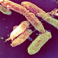Sie sind noch da: Pesterreger unter dem Rasterelektronenmikroskop