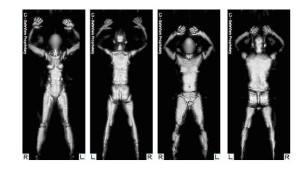 Nacktkameras gefallen EU-Parlamentariern nicht