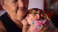 Ein vier Monate altes Baby mit Mikrozephalie. In anderen Fällen endet die Schädelfehlbildung vor oder kurz nach der Geburt tödlich. Dass wohl ein Zusammenhang zum Zika-Virus besteht, wird immer deutlicher.