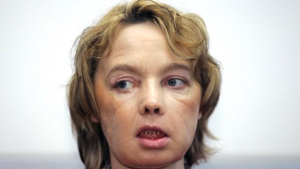 Erste Frau mit transplantiertem Gesicht gestorben